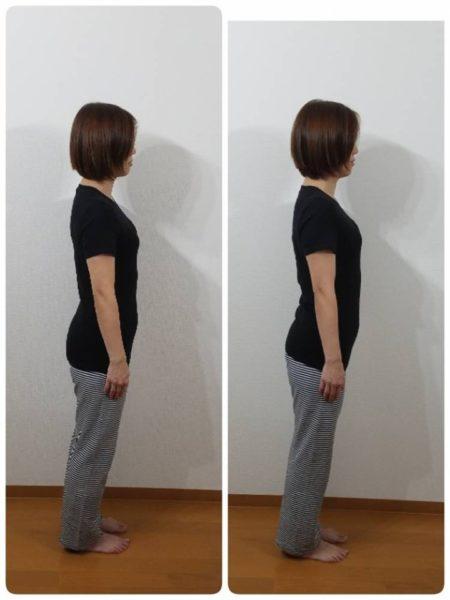 肋骨矯正のビフォーアフター|ボディバランススタジオあざみ野