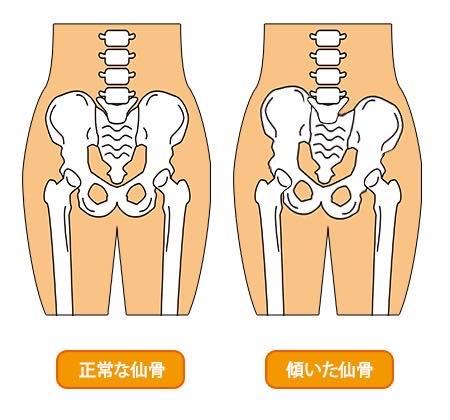 仙骨に着目した肋骨矯正とは?